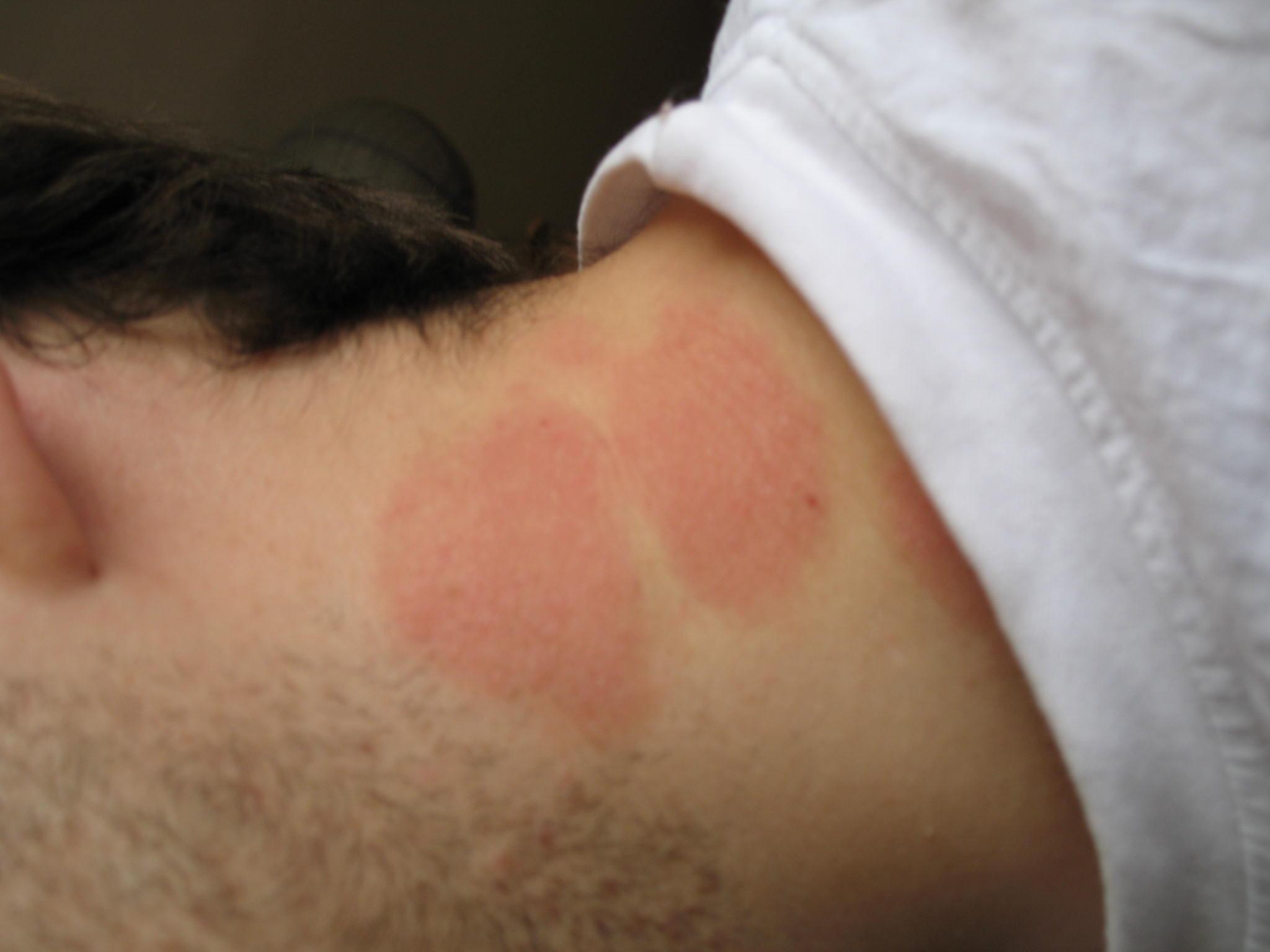 Comme éloigner la tache de pigment sur la peau